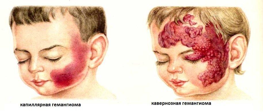 Гемангиома на голове: что представляет собой патология