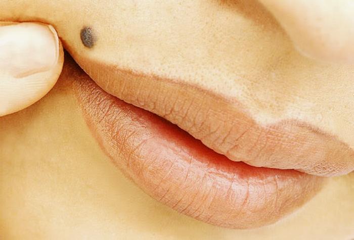 Значение родинки на носу у мужчин